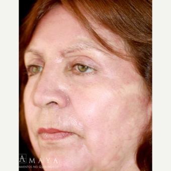 55-64 year old woman treated with Chemical Peel after 3418016