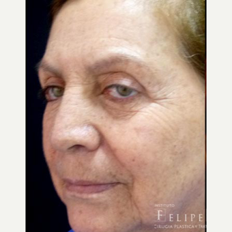 55-64 year old woman treated with Chemical Peel before 3418016