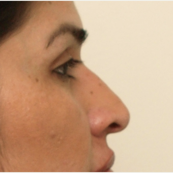 45-54 year old woman treated with Rhinoplasty before 3449086