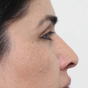 45-54 year old woman treated with Rhinoplasty after 3449086