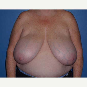 55-64 year old woman treated with Breast Reduction before 3326140