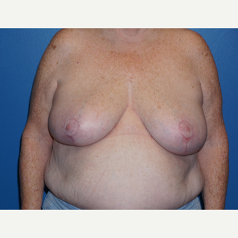 55-64 year old woman treated with Breast Reduction after 3326140