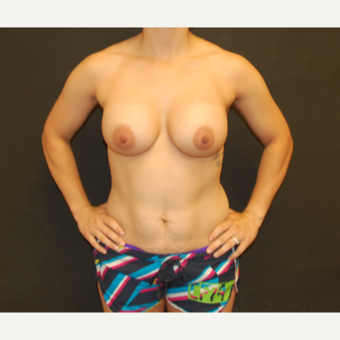 25-34 year old woman treated with Breast Implants after 3071677