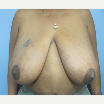 45-54 year old woman treated with Breast Reduction before 2993356