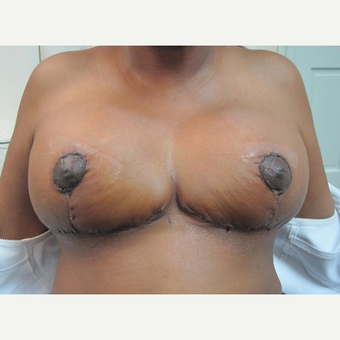 45-54 year old woman treated with Breast Reduction after 2993356