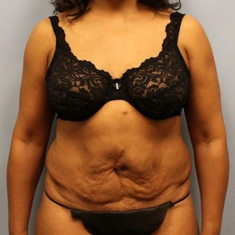 Revision Tummy Tuck with Liposuction before 2215389