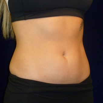 25-34 year old woman treated with SculpSure after 3164711