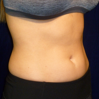 25-34 year old woman treated with SculpSure before 3164711