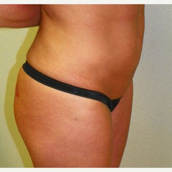 25-34 year old woman treated with Liposuction after 3318952