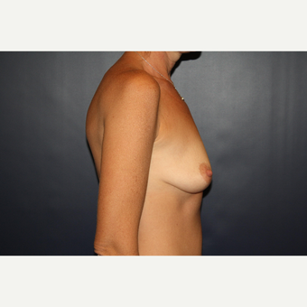 35-44 year old woman treated with Breast Augmentation before 3038747