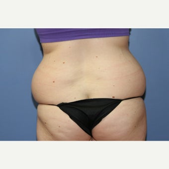 20 year-old woman treated with Liposuction of the Lovehandles before 1550843