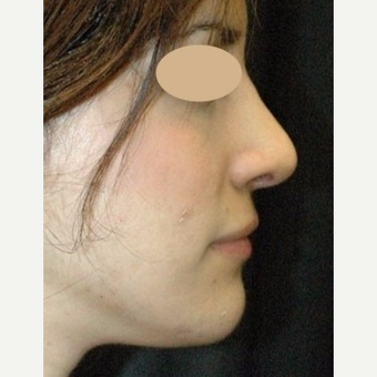 Rhinoplasty, open after 3618778