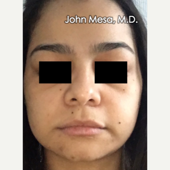 18-24 year old woman treated with Buccal Fat Removal before 3266746