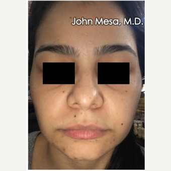 18-24 year old woman treated with Buccal Fat Removal after 3266746