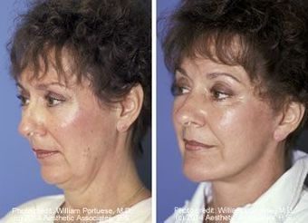 Face lift with a chin implant before 6765