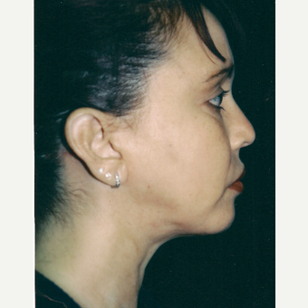 35-44 year old woman treated with Facelift after 3271710