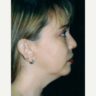 35-44 year old woman treated with Facelift before 3271710