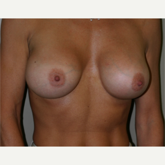 35-44 year old woman treated with Breast Augmentation after 3154071