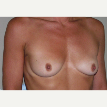 35-44 year old woman treated with Breast Augmentation before 3154071
