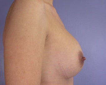 Breast Implant Correction after 281308