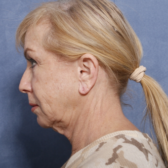 65-74 year old woman treated with Neck Lift (view 2 of 2) before 3175899