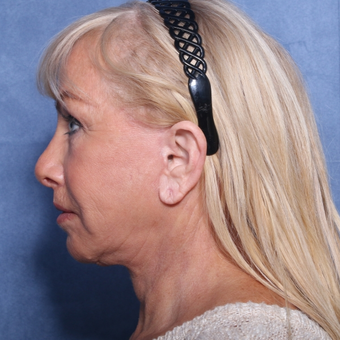 65-74 year old woman treated with Neck Lift (view 2 of 2) after 3175899