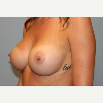 25-34 year old woman treated with Breast Augmentation after 3570220