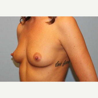 25-34 year old woman treated with Breast Augmentation before 3570220