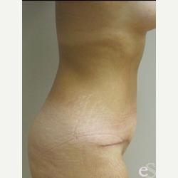 Tummy Tuck after 3484776