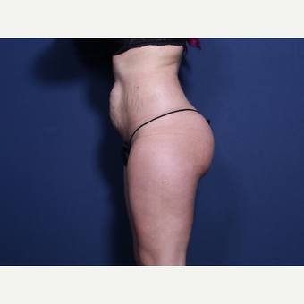 25-34 year old woman treated with Tummy Tuck (view 2 of 2) before 3372171