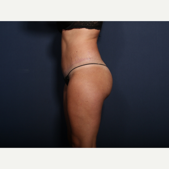 25-34 year old woman treated with Tummy Tuck (view 2 of 2) after 3372171