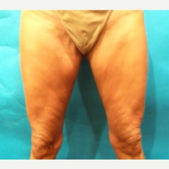35-44 year old woman treated with Cellulaze before 2325069