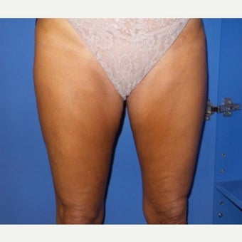 35-44 year old woman treated with Cellulaze after 2325069
