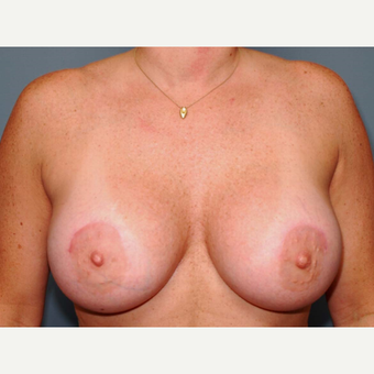 38 y/o Dual Plane Crescent Breast Augmentation after 3065936