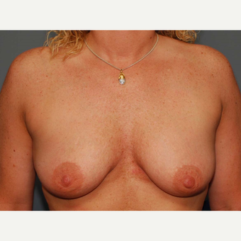 38 y/o Dual Plane Crescent Breast Augmentation before 3065936
