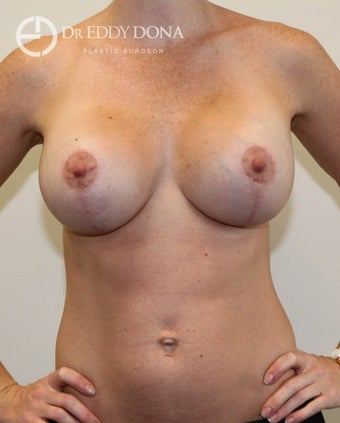 25-34 year old woman treated with Breast Lift with Implants after 1617914