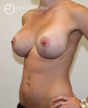 25-34 year old woman treated with Breast Lift with Implants 1617914