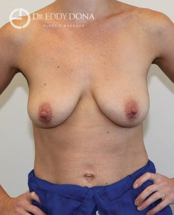 25-34 year old woman treated with Breast Lift with Implants before 1617914