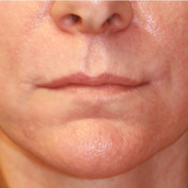 45-54 year old woman treated with Lip Lift after 3560861