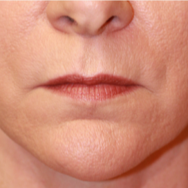 45-54 year old woman treated with Lip Lift before 3560861