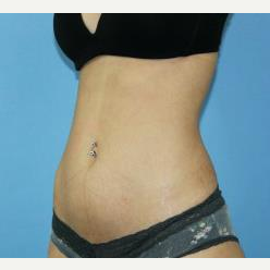 25-34 year old woman treated with Liposuction after 3140313