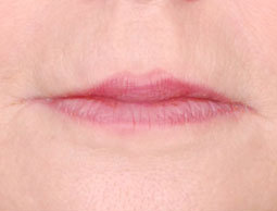 Restylane Lip Injection before 222099