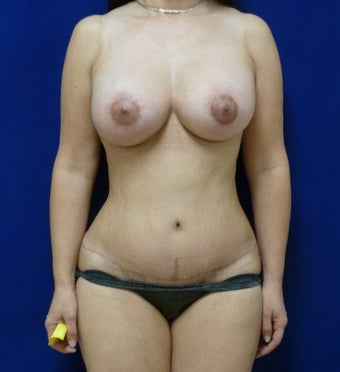 46 y.o. – female – Periareolar lift with silicone breast augmentation and abdominoplasty; 450cc Silicone Implants after 1519903