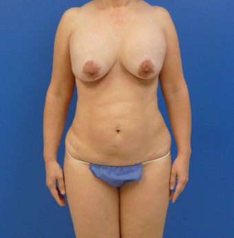 46 y.o. – female – Periareolar lift with silicone breast augmentation and abdominoplasty; 450cc Silicone Implants before 1519903