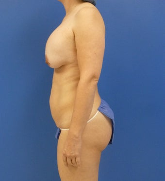 46 y.o. – female – Periareolar lift with silicone breast augmentation and abdominoplasty; 450cc Silicone Implants 1519903