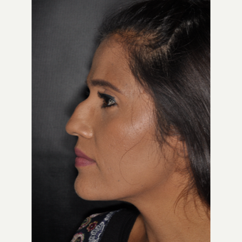 25-34 year old woman treated with Nose Surgery 10 days post-op before 3452325