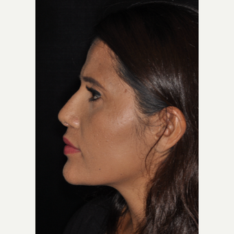 25-34 year old woman treated with Nose Surgery 10 days post-op after 3452325