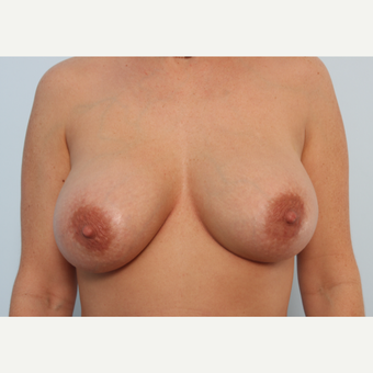 Breast Implant Exchange after 2966313
