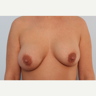 Breast Implant Exchange before 2966313