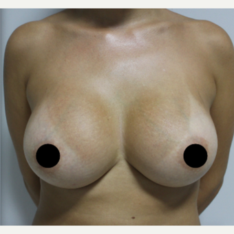 25-34 year old woman treated with Breast Augmentation after 3184656
